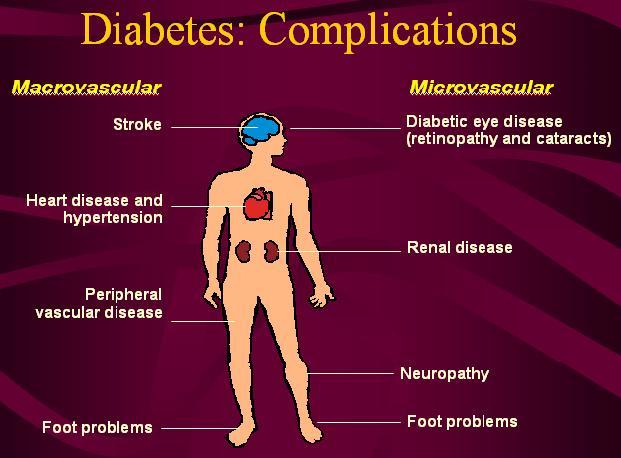 Akibat Diabetes Melitus, Organ Tubuh Bisa Terserang ?