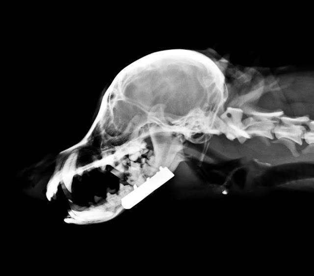 placa en fractura de mandíbula, vista lateral