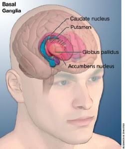 Sindroma Aksen Asing