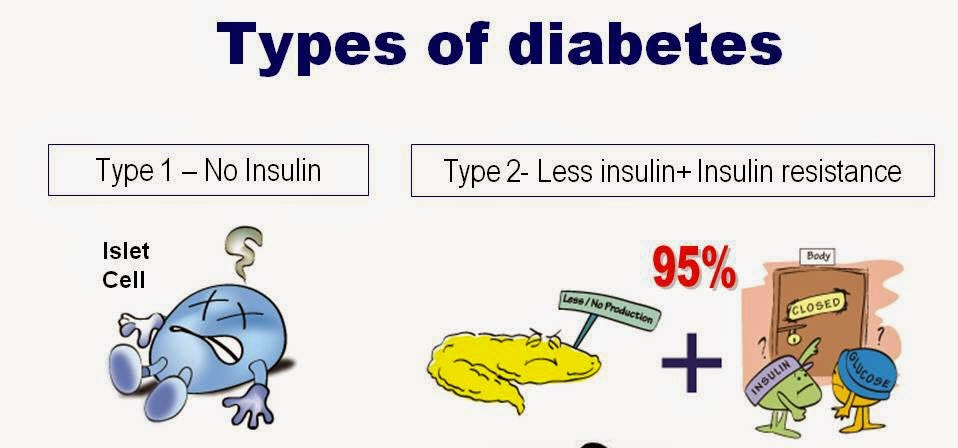 understanding the two types of diabetes Understanding type 2 diabetes two types of diabetes two types of diabetes though they both deal with insulin and a build up of glucose.