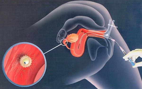 kak-iskusstvenno-podsadit-spermatozoid-v-den-ovulyatsii