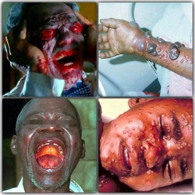 Ebola Penyakit Akhir Zaman