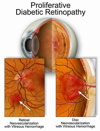 diabetic retinopathy stages images