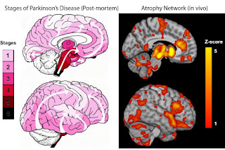 Study Map Progression Of Parkinson's Within The Brain