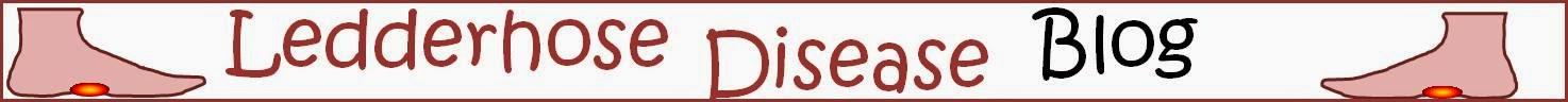 Ledderhose Disease Blog