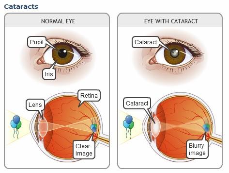http://www.krishnaeyecentre.com/cataract.php