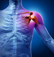 Shoulder Pain Prevention