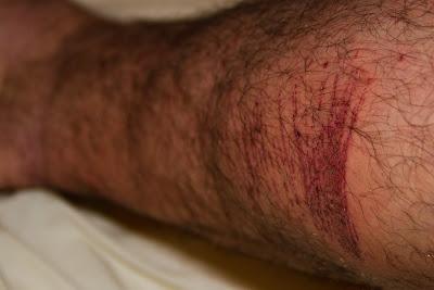 Pete R bramble war wound