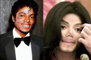 Michael Jackson Plastic Surgery Before And After Nose Jobs