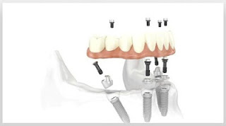 New Teeth Implant Cost NJ
