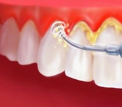 8 Cara Membersihkan Karang Gigi Secara Tradisional