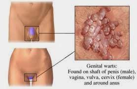 menrontokkan kutil di bibir vagina