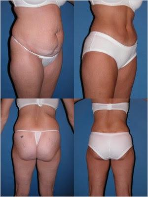 resultados de uma abdominoplastia