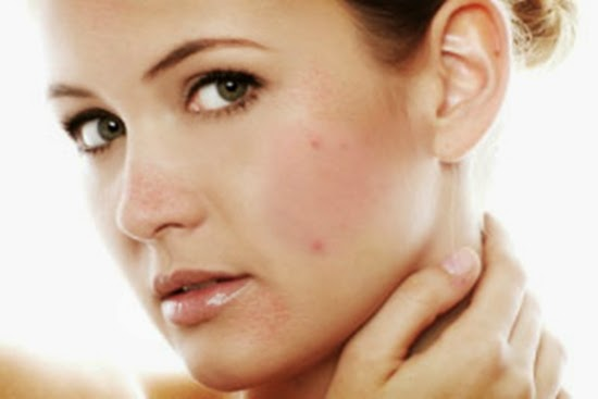 How To Eliminate The Former Pimples And Black Spots