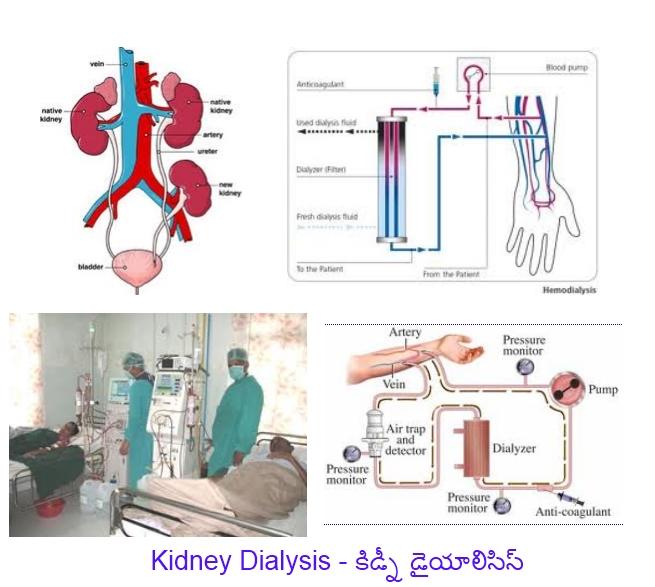 http://2.bp.blogspot.com/-5W5j6eSYtXw/TluKColesVI/AAAAAAAACHE/HH-iaBWTvYk/s1600/Kidney%2BDialysis.jpg