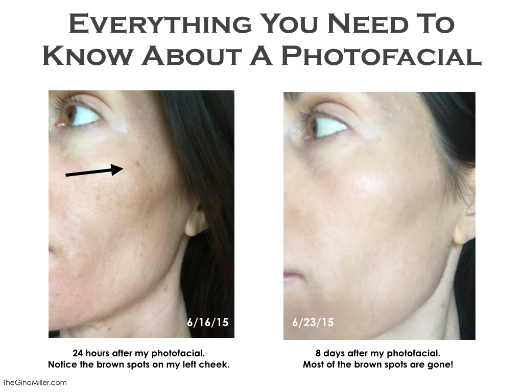Photofacial review, photofacial before & after, photofacial cost, photofacial benefits
