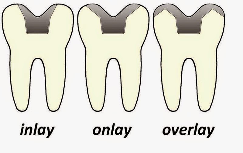 Incrustaciones-Dentales