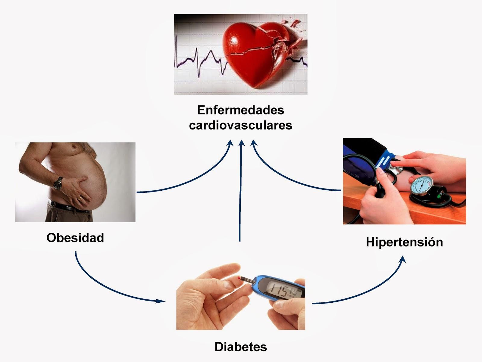 Relación entre la obesidad, la diabetes, la hipertensión y las enfermedades cardiovasculares