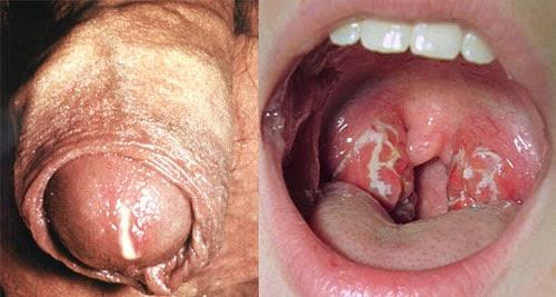 gejala kencing nanah