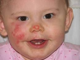 Health Pictures: impetigo in children