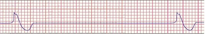 P Wave Asystole Float Nurse: ACLS revi...