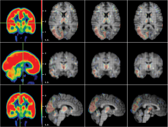 the clinical description of huntingtons disease Also, symptoms in juvenile hd can differ substantially from those with adult-onset  of hd although  clinical symptoms of huntington's disease.