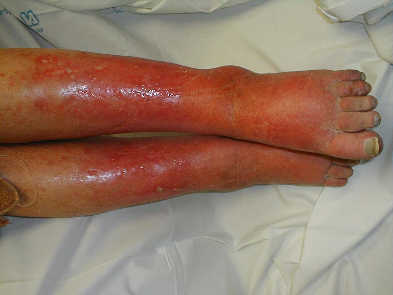 Cellulitis : Causes, Symptoms, Treatments & Pictures