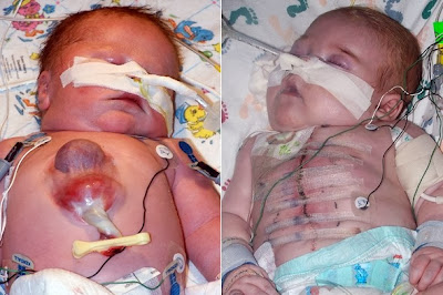 http://www.parentdish.co.uk/kids/medical-miracle-ryan-marquiss-is-the-first-baby-to-survive-born-with-heart-outside-body/