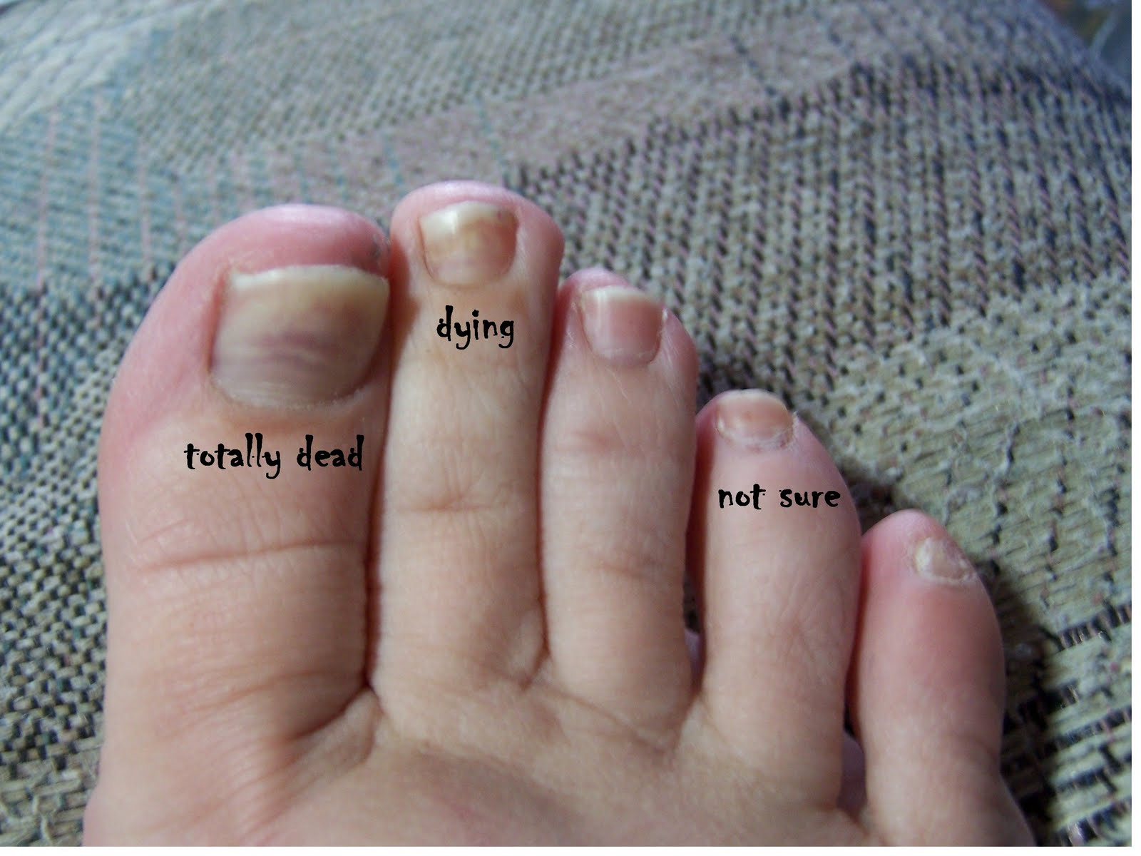What S Wannietta Knitting Today Unled Image001 Raised Or Lifted Toenail