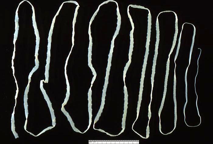 Extra-large tapeworm