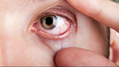 Diabetic Retinopathy Symptoms And Treatment