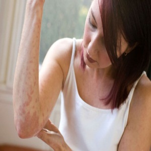 Home Treatments For Skin Rashes