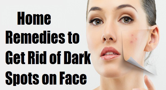 Home Remedies To Get Rid Of Dark Spots From Your Face