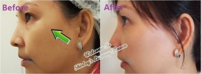 eha clinic ipl laser aesthetics review