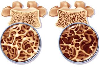http://www.women-health-info.com/635-Smoking-and-bones.html