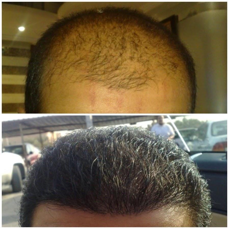 افضل طريقة التخلص من الصلع الأمامي وعلاج الشعر الخفيف ومنع تساقط الشعر