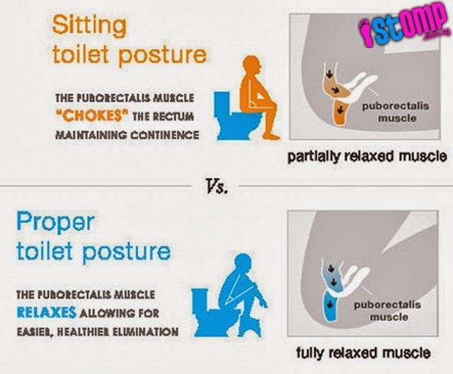 toilet duduk vs jongkok