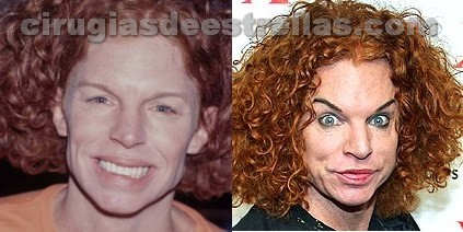 carrot top antes y despues