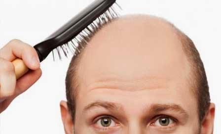 تساقط الشعر الوراثي احد اسباب تساقط الشعر