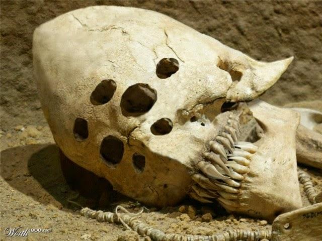 5 of The Strangest Skulls Ever Discovered