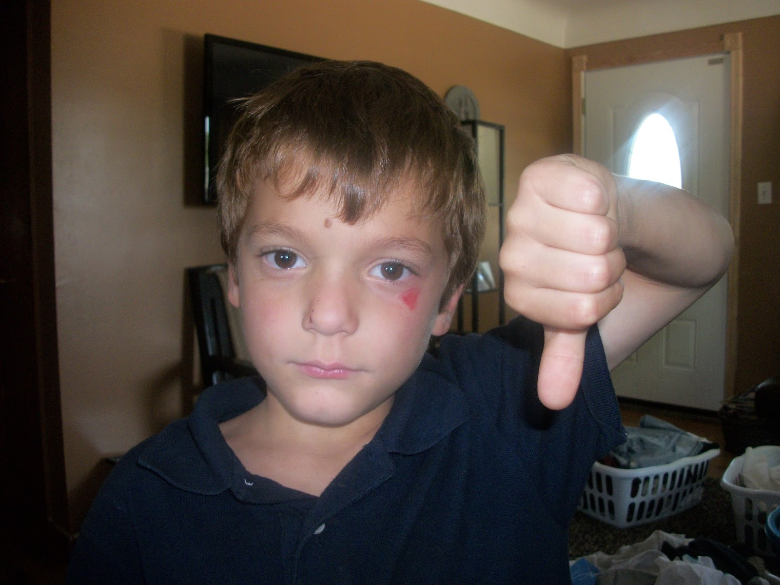 Kole With A Rug Burn Under His Eye
