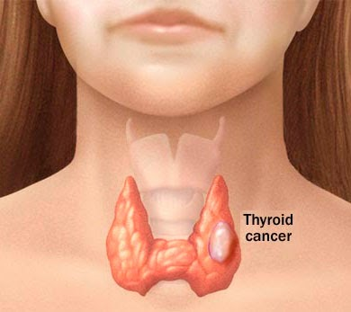 Thyroid Cancer Symptoms and Signs for Children