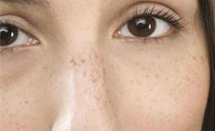 Pilihan tepat dalam atasi flek hitam di wajah dengan cepat juga alami