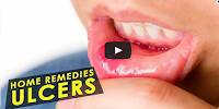natural treatment for ulcers in the mouth