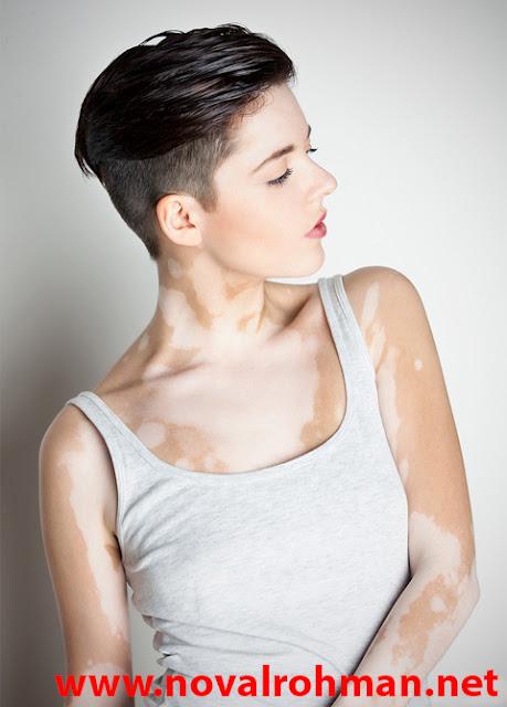 Obat Alternatif Untuk Penyakit Pigmentasi Kulit