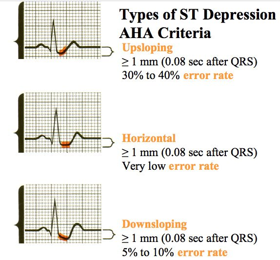 Medical Addicts: Types of ST Depression on ECG