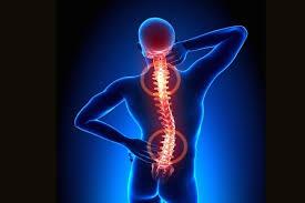 Tratando a artrose da Coluna Vertebral