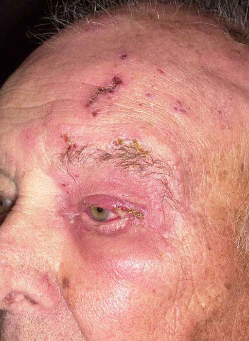 herpes zoster pictures #11