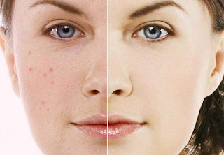 Miracle treatment of all types of acne Tretinoin Cream