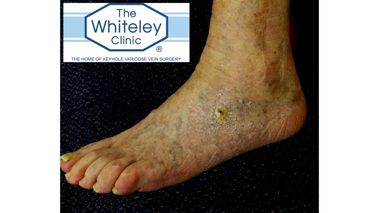 Venous foot ulcer - cured by The Whiteley Protocol (TM)